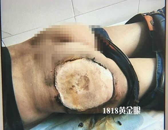 xiaomi-4c-explosa%cc%83o