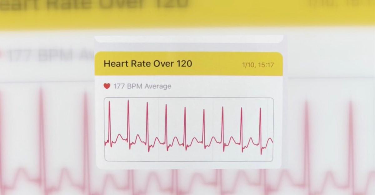 Apple Watch ajuda mulher a descobrir doença cardíaca